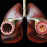 asthma_bronchial-3-convertimage